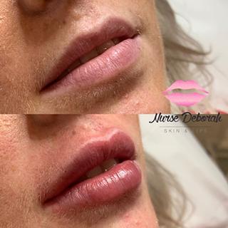 Nurse Deborah Skin and Lips Clinic