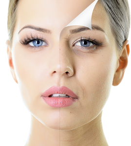 Depigmentation Peel Treatment