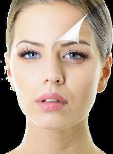 Facial Peel in Cork